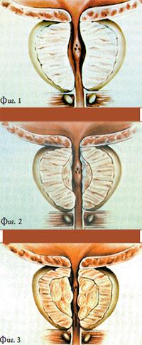 Простата лечение медикаментозно